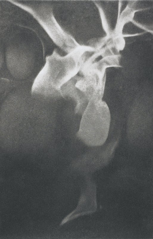 abstracted image; V-shaped flame at top with light rounded elements in background