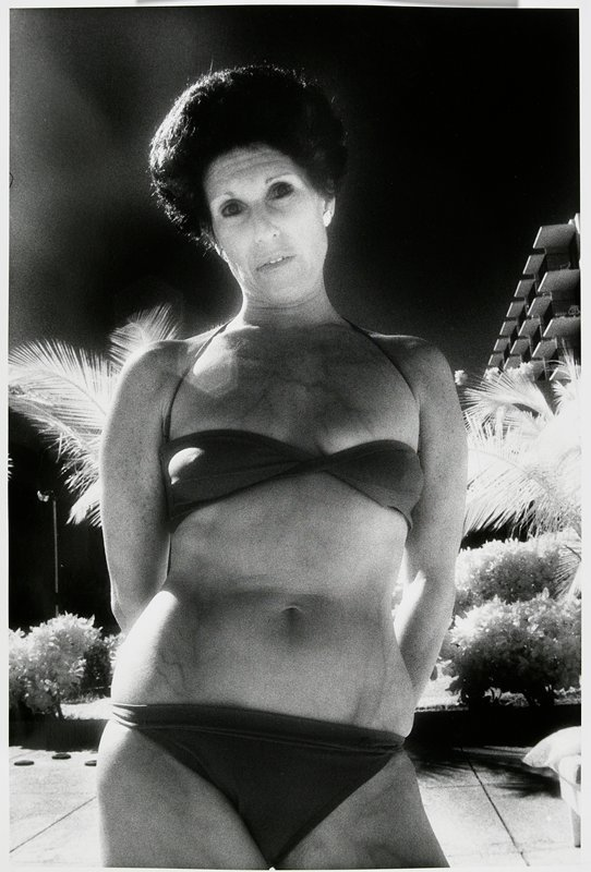 head and torso of a woman with short dark hair wearing a bikini; veins visible on woman's chest, abdomen and legs; palms behind; matted